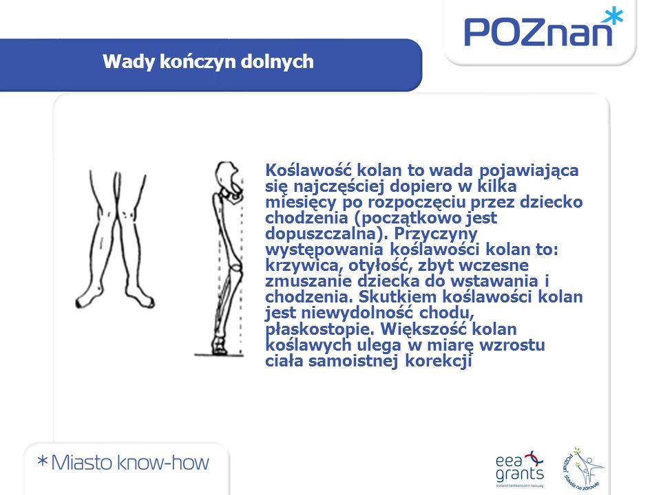 Wady kończyn dolnych Koślawość kolan to wada pojawiająca się najczęściej dopiero w kilka miesięcy po rozpoczęciu przez dziecko chodzenia (początkowo jest dopuszczalna).