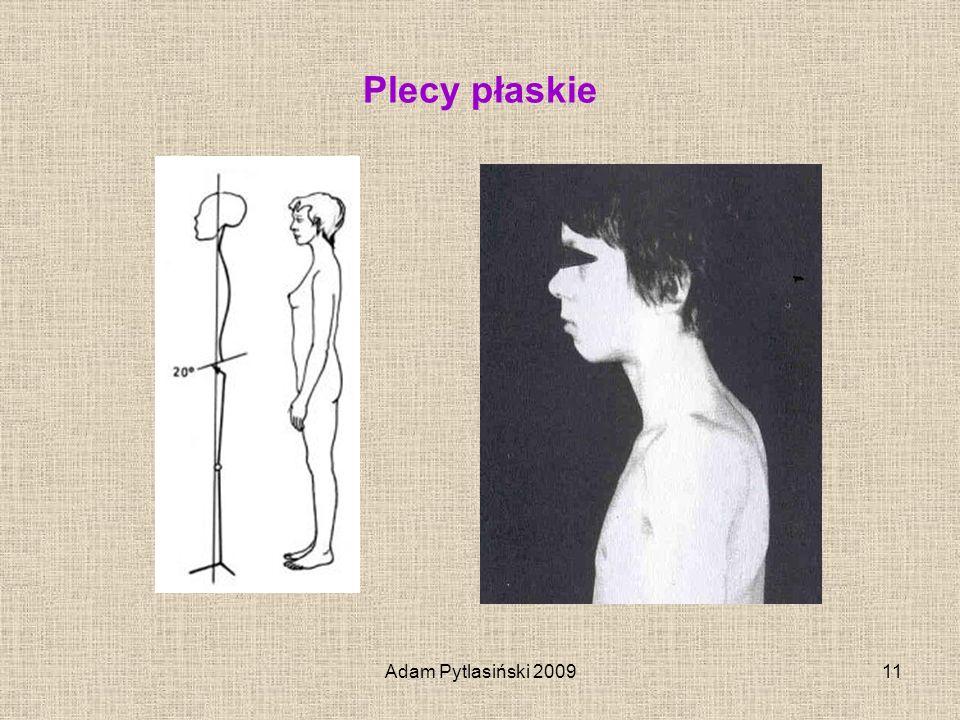 Adam Pytlasiński 200911 Plecy płaskie