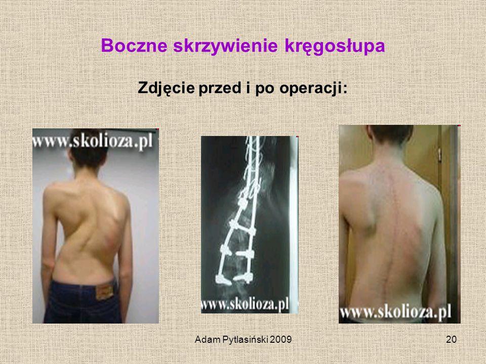 Adam Pytlasiński 200920 Boczne skrzywienie kręgosłupa Zdjęcie przed i po operacji: