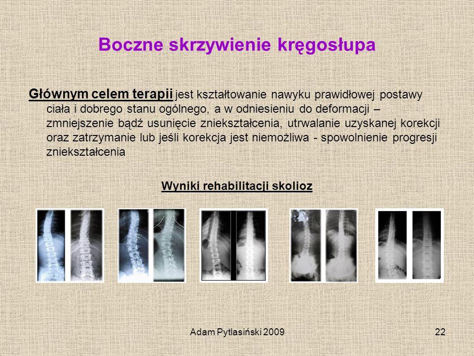 Adam Pytlasiński 200922 Boczne skrzywienie kręgosłupa Głównym celem terapii jest kształtowanie nawyku prawidłowej postawy ciała i dobrego stanu ogólne
