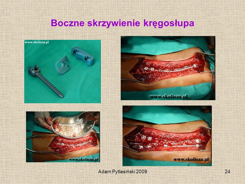 Adam Pytlasiński 200924 Boczne skrzywienie kręgosłupa