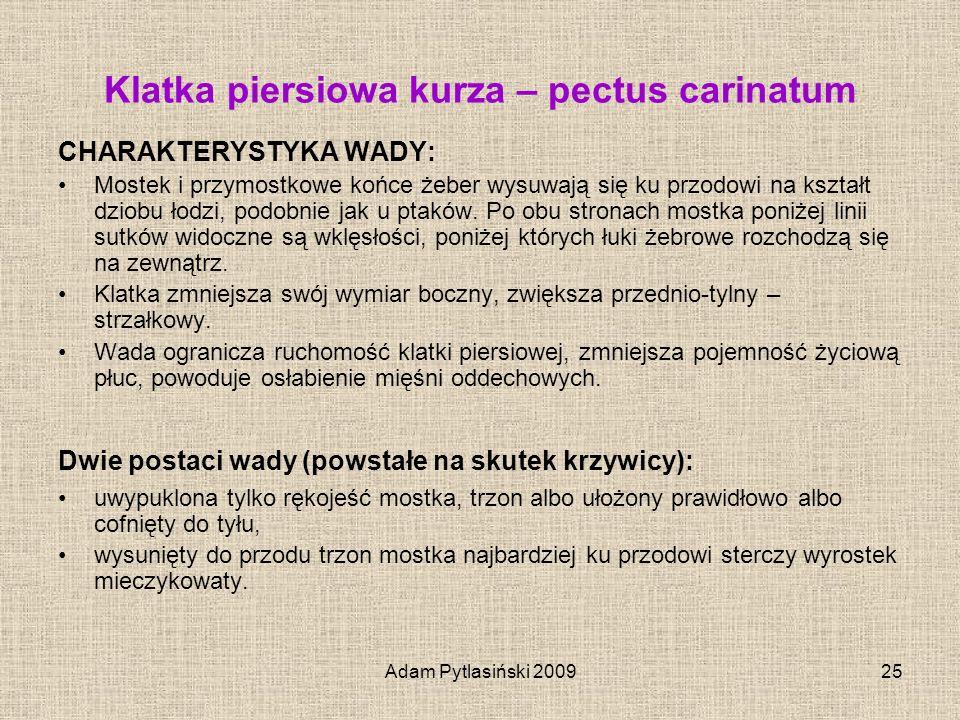 Adam Pytlasiński 200925 Klatka piersiowa kurza – pectus carinatum CHARAKTERYSTYKA WADY: Mostek i przymostkowe końce żeber wysuwają się ku przodowi na