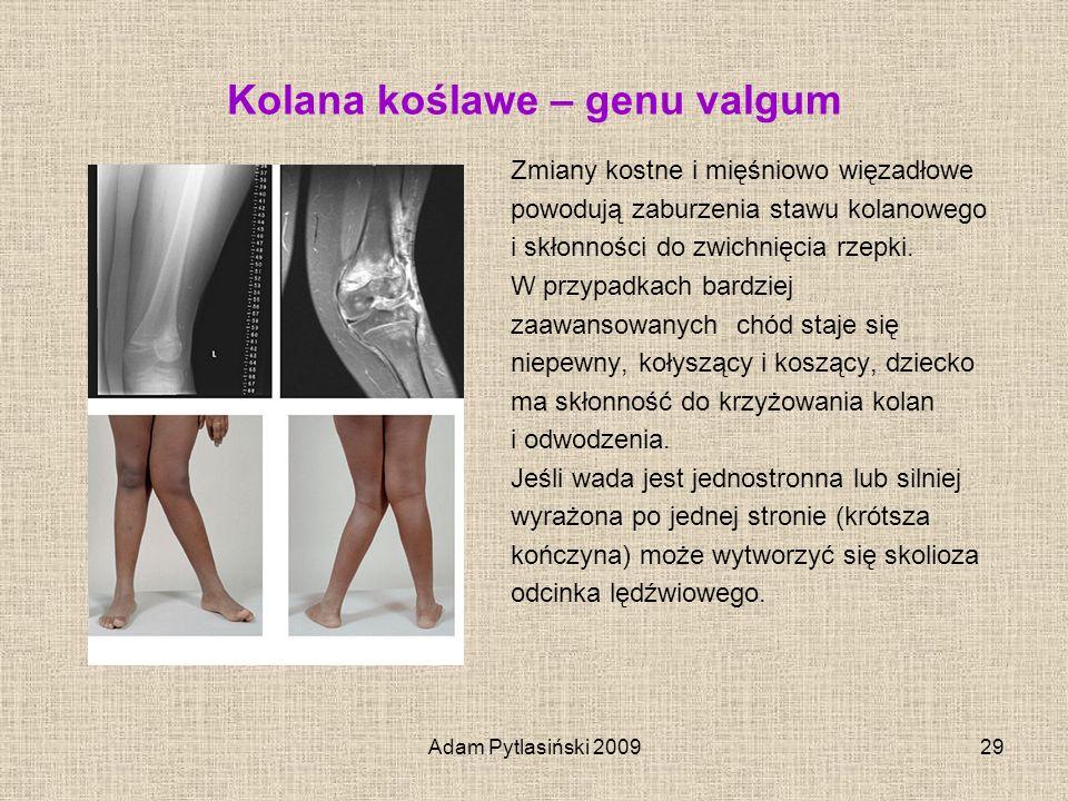 Adam Pytlasiński 200929 Kolana koślawe – genu valgum Zmiany kostne i mięśniowo więzadłowe powodują zaburzenia stawu kolanowego i skłonności do zwichni