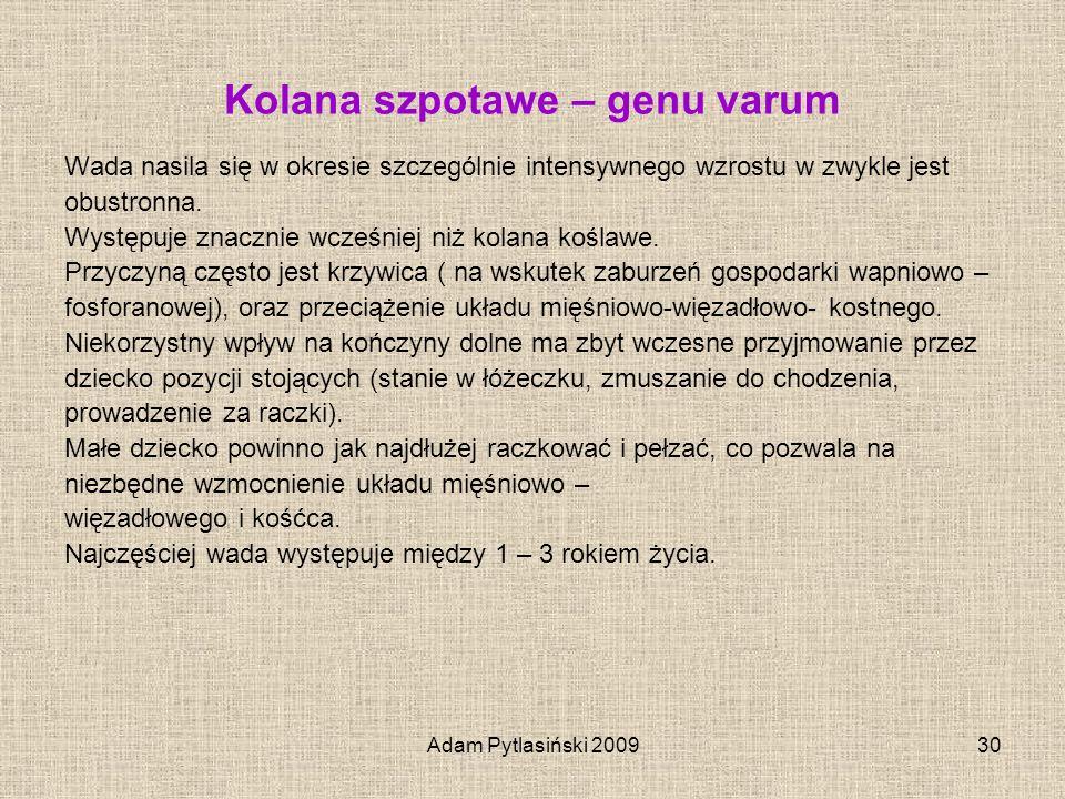 Adam Pytlasiński 200930 Kolana szpotawe – genu varum Wada nasila się w okresie szczególnie intensywnego wzrostu w zwykle jest obustronna. Występuje zn
