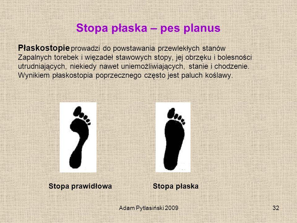 Adam Pytlasiński 200932 Stopa płaska – pes planus Płaskostopie prowadzi do powstawania przewlekłych stanów Zapalnych torebek i więzadeł stawowych stop