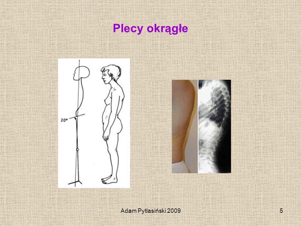 Adam Pytlasiński 20096 Plecy wklęsłe – dorsum concavum Cechy charakterystyczne sylwetki dziecka z plecami wklęsłymi : Pogłębiona lordoza lędźwiowa Barki wysunięte do przodu i opadają w dół Łopatki odstają, łuki żebrowe dolne odstają Klatka piersiowa jest spłaszczona co upośledza funkcje oddychania i krążenia Brzuch wypięty, niekiedy obwisły Zwiększone przodopochylenie miednicy Przesunięcie górnej części tułowia ku tyłowi, spojenie łonowe jest najbardziej wystającą ku przodowi częścią ciała