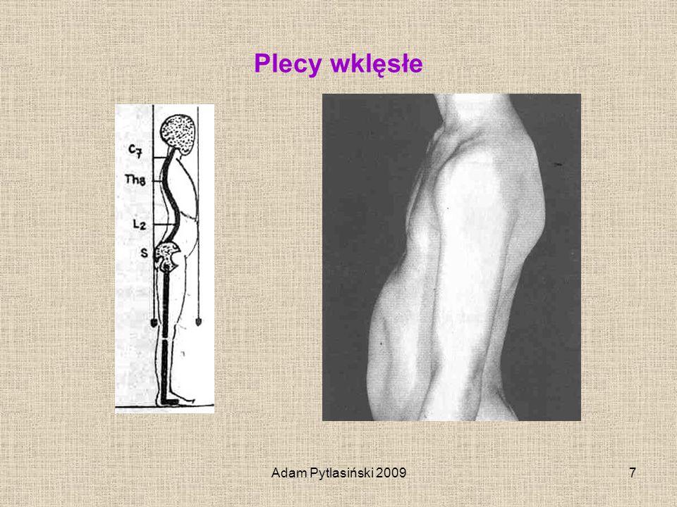 Adam Pytlasiński 200918 Boczne skrzywienie kręgosłupa