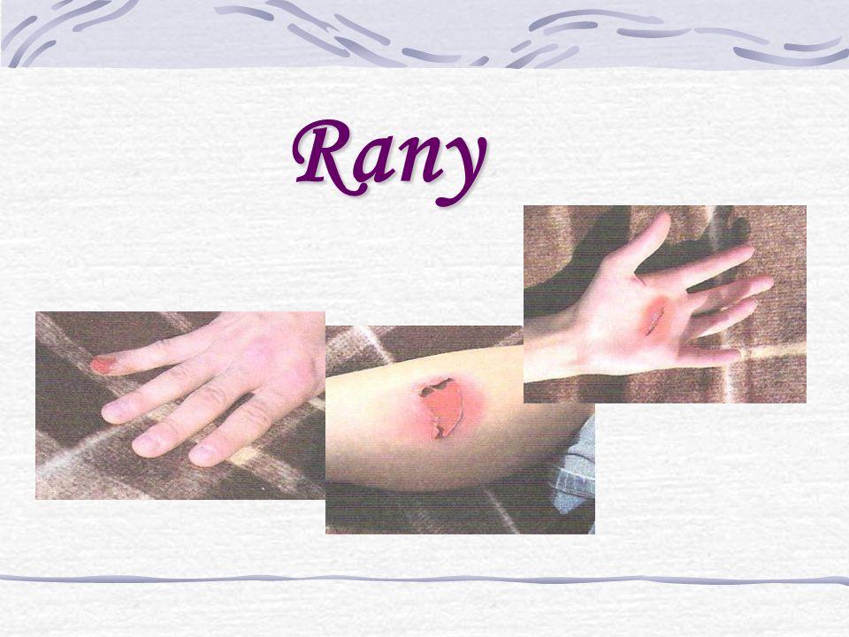 Pomoc W przypadku małych, tylko nieznacznie zabrudzonych skaleczeń, wystarczy świeżą ranę oczyścić pod bieżącą wodą z kranu, następnie zdezynfekować i opatrzyć plastrem nie przyklejającym się do rany (atraumatycznym).