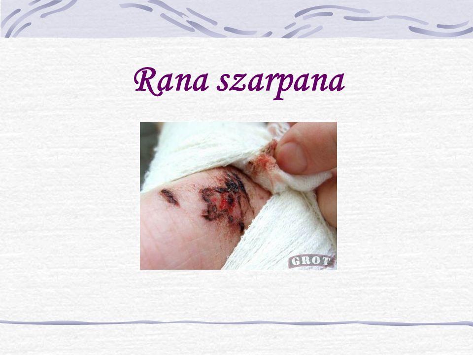 Rana szarpana