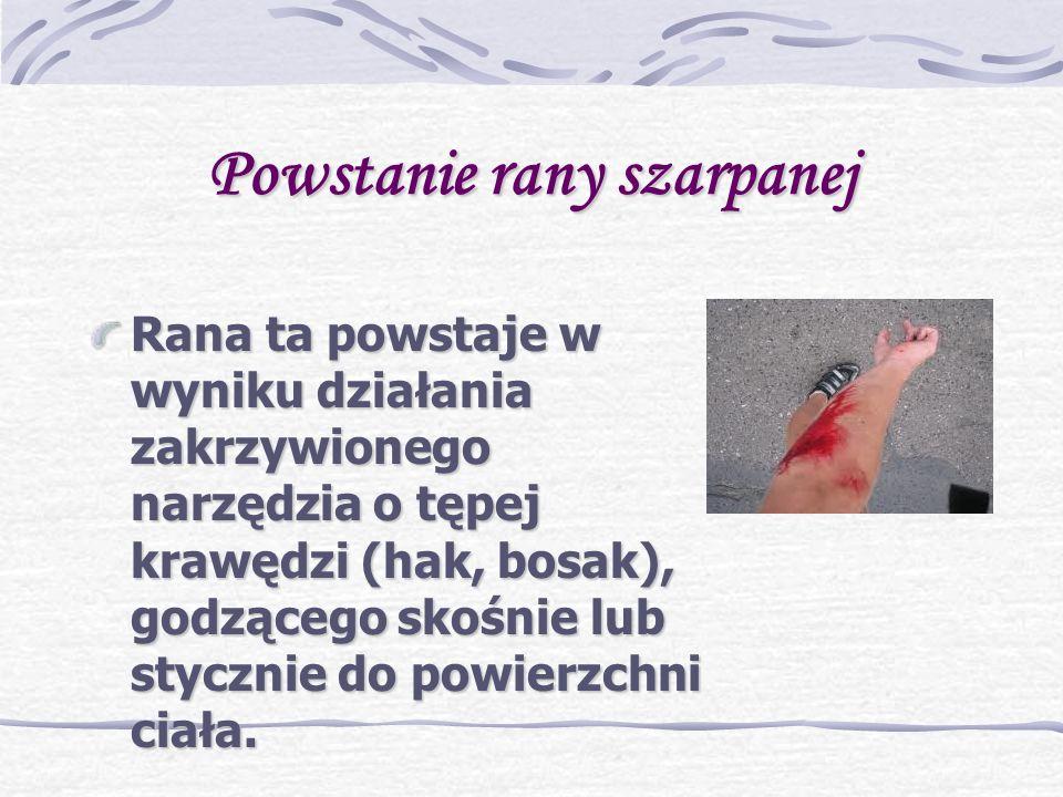 Powstanie rany szarpanej Rana ta powstaje w wyniku działania zakrzywionego narzędzia o tępej krawędzi (hak, bosak), godzącego skośnie lub stycznie do powierzchni ciała.