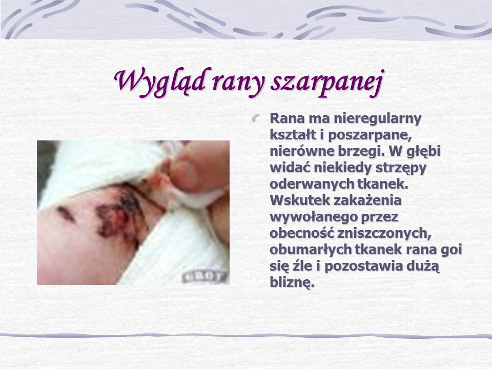 Wygląd rany szarpanej Rana ma nieregularny kształt i poszarpane, nierówne brzegi.