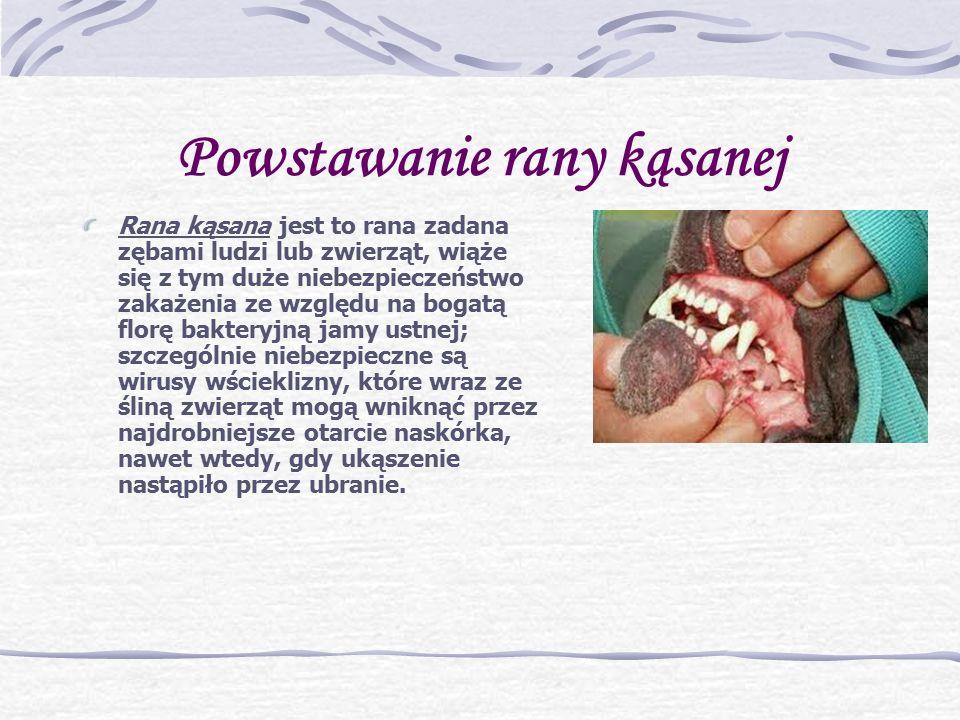 Powstawanie rany kąsanej Rana kąsana jest to rana zadana zębami ludzi lub zwierząt, wiąże się z tym duże niebezpieczeństwo zakażenia ze względu na bogatą florę bakteryjną jamy ustnej; szczególnie niebezpieczne są wirusy wścieklizny, które wraz ze śliną zwierząt mogą wniknąć przez najdrobniejsze otarcie naskórka, nawet wtedy, gdy ukąszenie nastąpiło przez ubranie.