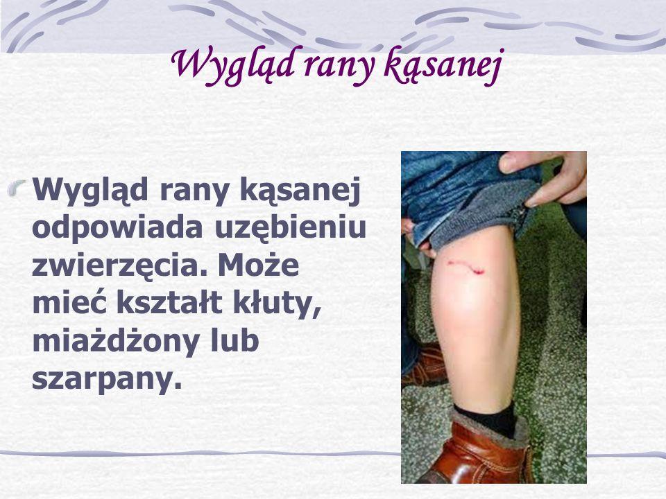 Wygląd rany kąsanej Wygląd rany kąsanej odpowiada uzębieniu zwierzęcia.