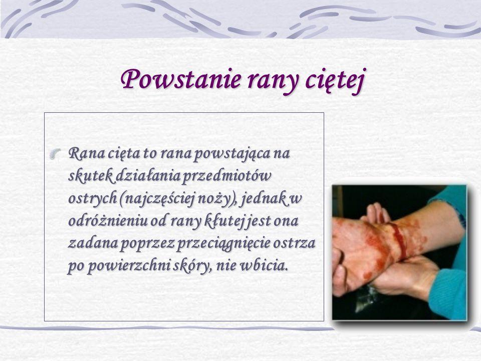 Powstanie rany ciętej Rana cięta to rana powstająca na skutek działania przedmiotów ostrych (najczęściej noży), jednak w odróżnieniu od rany kłutej jest ona zadana poprzez przeciągnięcie ostrza po powierzchni skóry, nie wbicia.