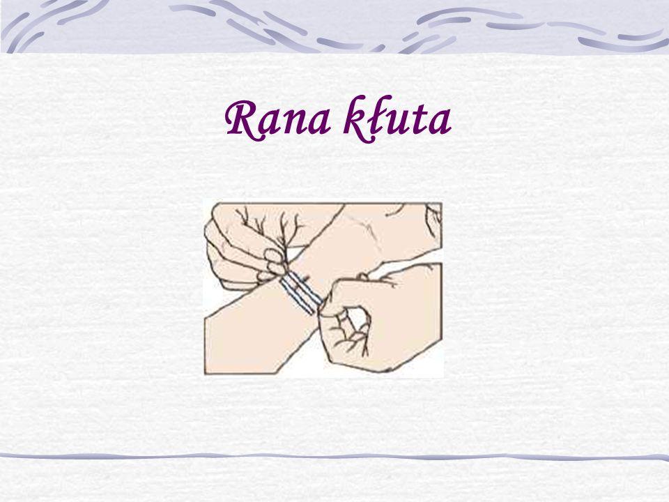Powstanie rany kłutej Rana kłuta powstaje w skutek działania przedmiotów długich, spiczastych, wąskich takich jak: nóż, dłuto, pilnik, szydełko.