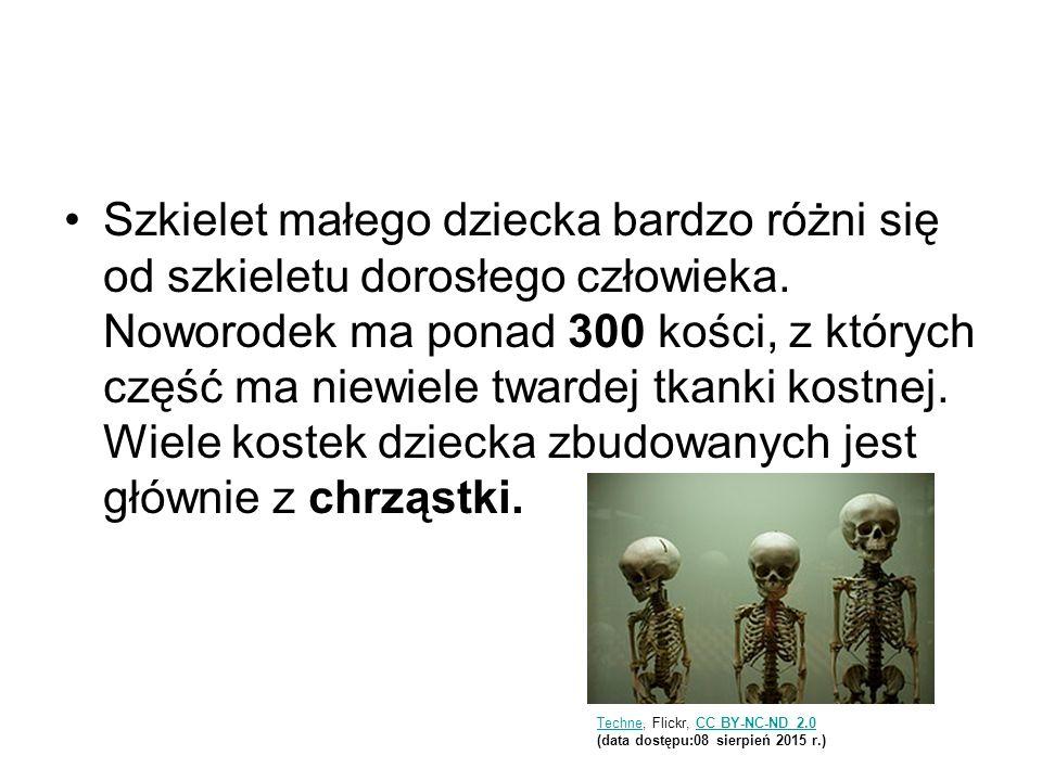 Szkielet małego dziecka bardzo różni się od szkieletu dorosłego człowieka. Noworodek ma ponad 300 kości, z których część ma niewiele twardej tkanki ko