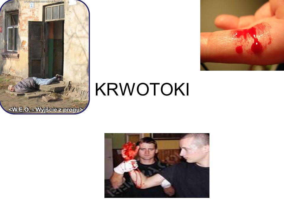 KRWOTOKI