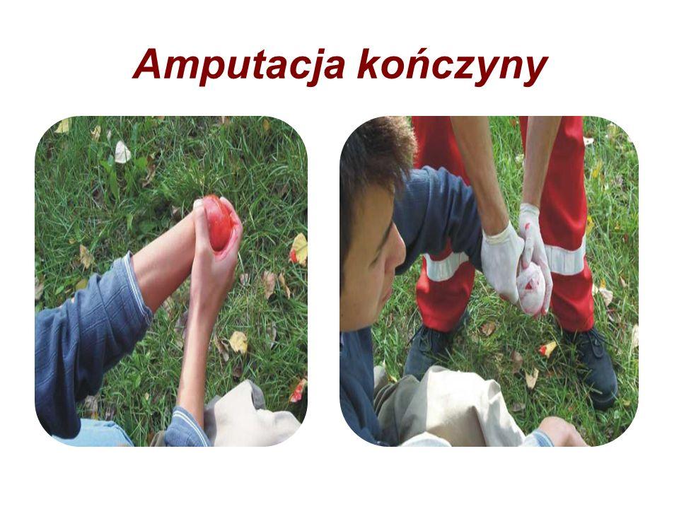 Amputacja kończyny