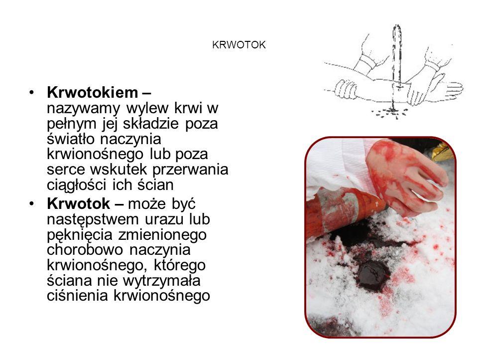 KRWOTOK Krwotokiem – nazywamy wylew krwi w pełnym jej składzie poza światło naczynia krwionośnego lub poza serce wskutek przerwania ciągłości ich ścia
