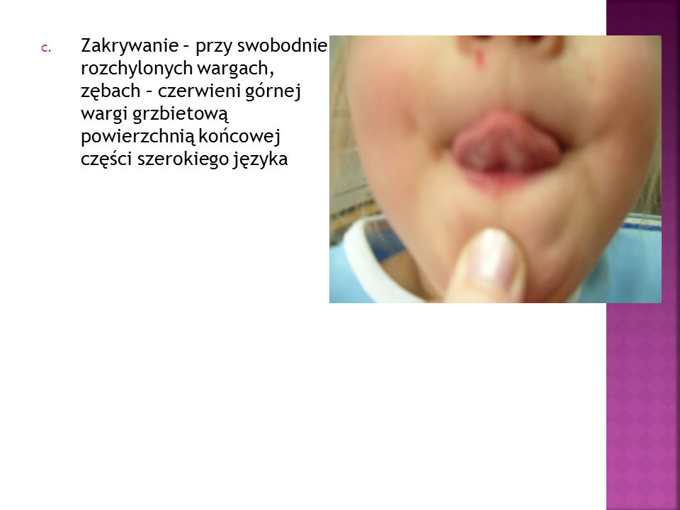 c. Zakrywanie – przy swobodnie rozchylonych wargach, zębach – czerwieni górnej wargi grzbietową powierzchnią końcowej części szerokiego języka