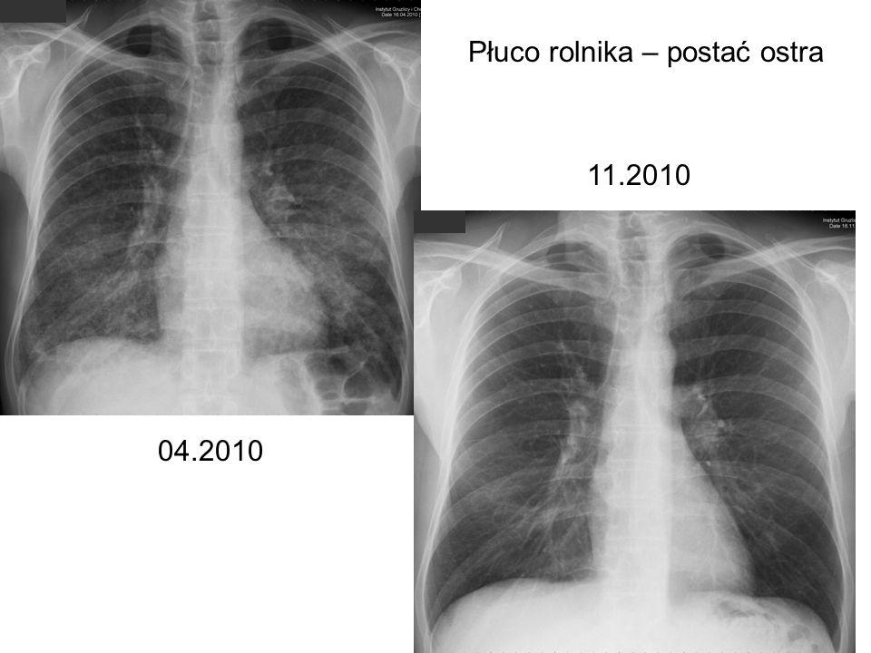 04.2010 11.2010 Płuco rolnika – postać ostra