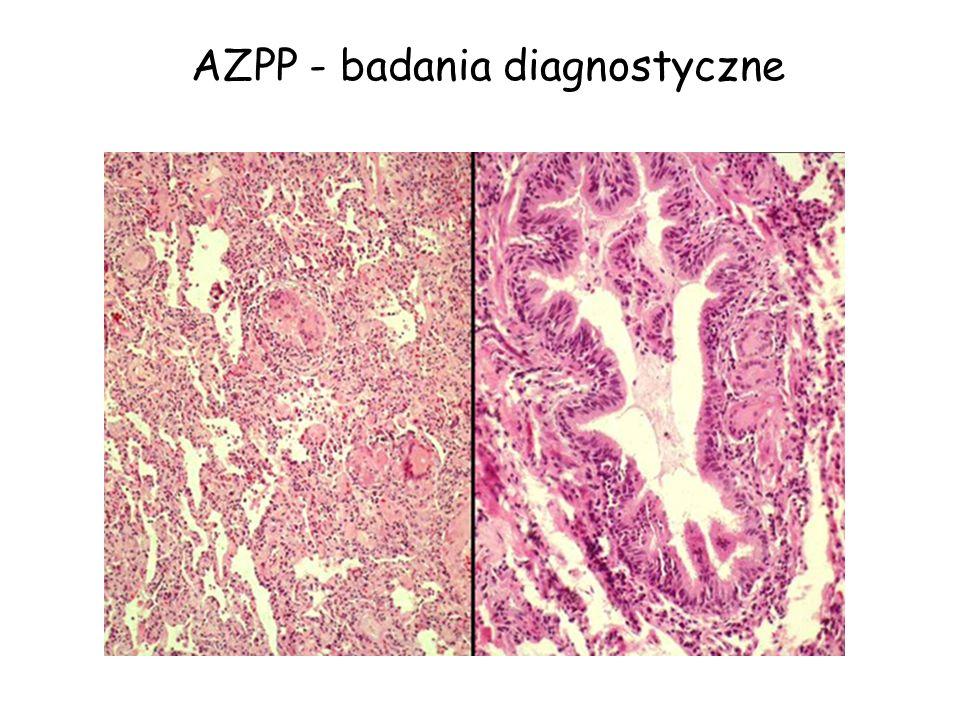 AZPP - badania diagnostyczne