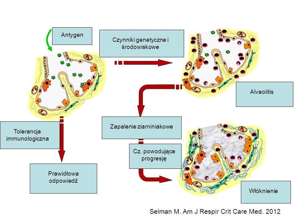 Tolerancja immunologiczna Prawidłowa odpowiedź Zapalenie ziarniniakowe Czynniki genetyczne i środowiskowe Alveolitis Włóknienie Cz. powodujące progres