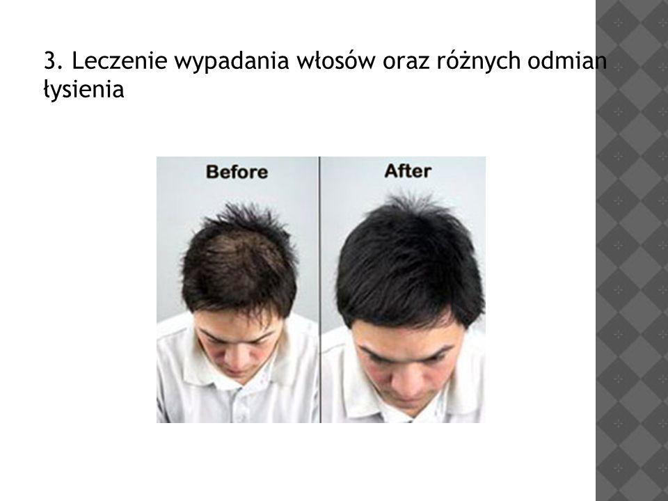 3. Leczenie wypadania włosów oraz różnych odmian łysienia