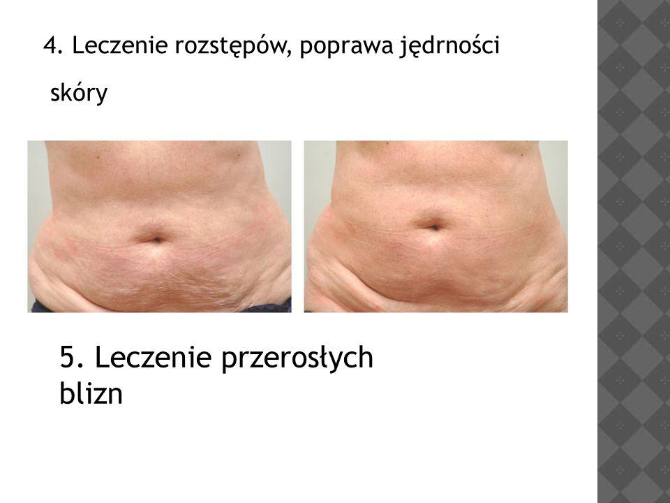4. Leczenie rozstępów, poprawa jędrności skóry 5. Leczenie przerosłych blizn