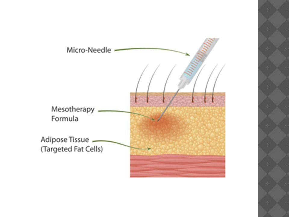 Mezoterapia  Wprowadzona przez francuskiego lekarza Michela Pistora w 1950r.