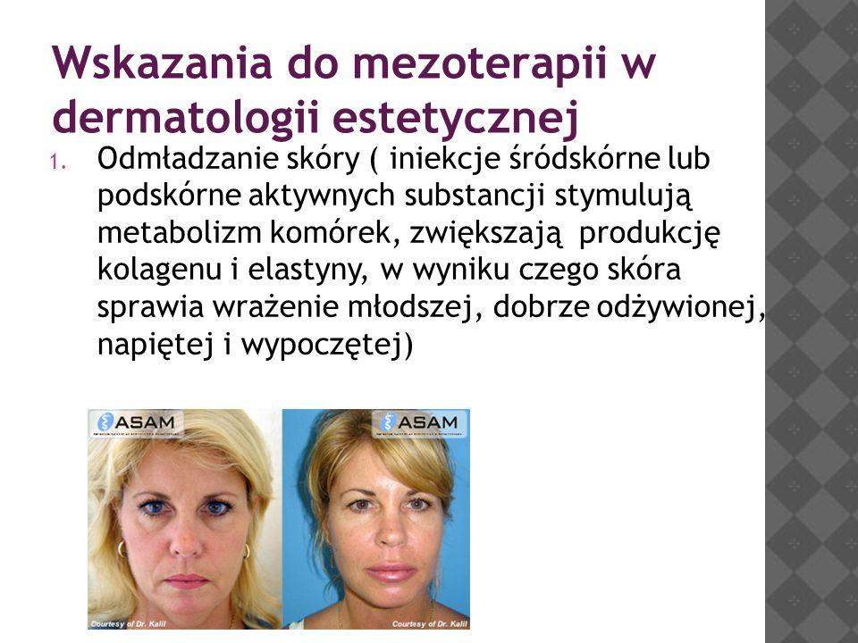 Wskazania do mezoterapii w dermatologii estetycznej 1. Odmładzanie skóry ( iniekcje śródskórne lub podskórne aktywnych substancji stymulują metabolizm