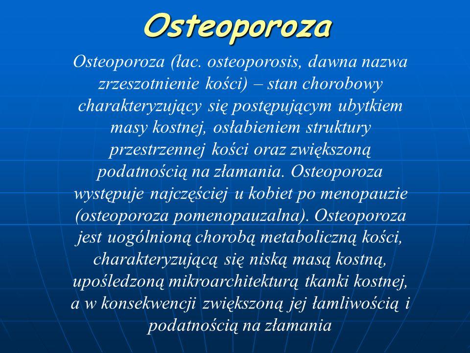 Osteoporoza Osteoporoza (łac.