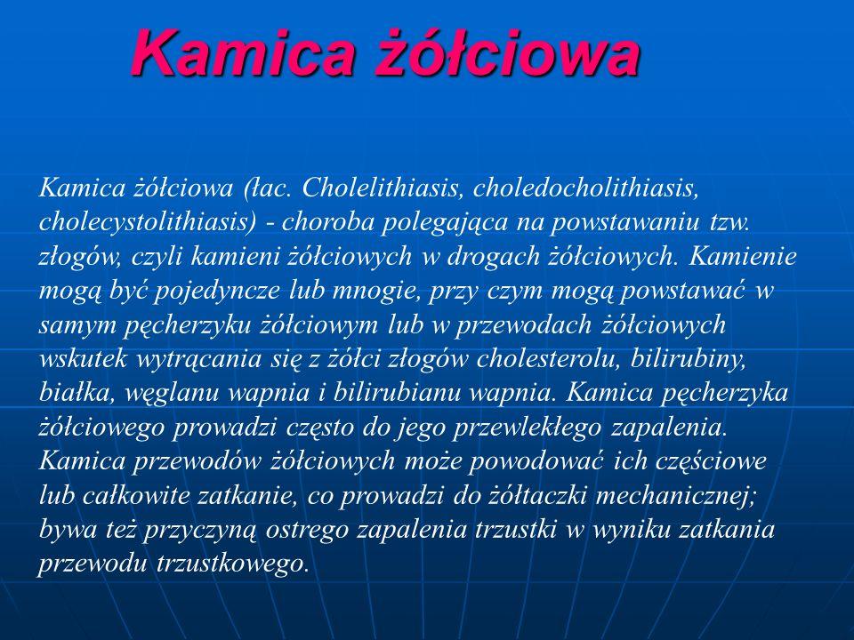Kamica żółciowa Kamica żółciowa (łac.