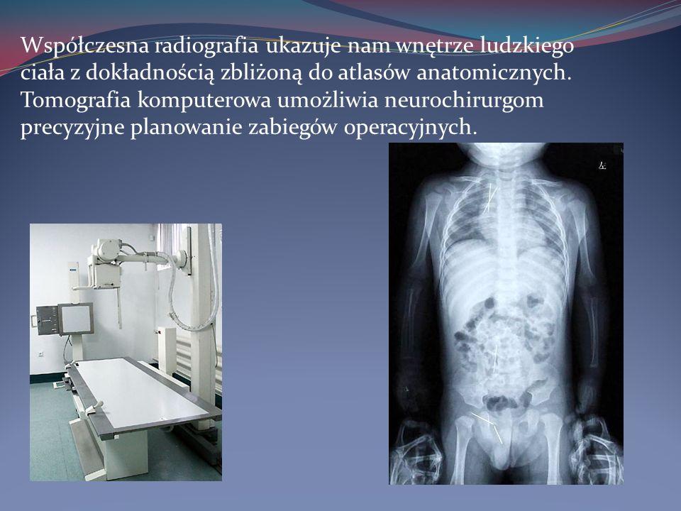 Radiografia cyfrowa Nowoczesne urządzenia rentgenowskie wyposażone w tak zwany tor wizyjny składający się ze wzmacniacza obrazu, kamery wideo, łączącego je układu optycznego oraz komputera, umożliwiają uzyskiwanie obrazu cyfrowego bezpośrednio w czasie rzeczywistym.