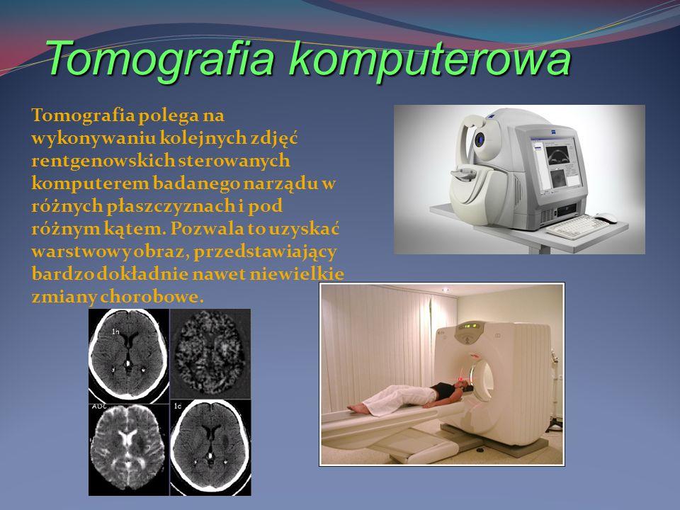 Radioterapia Radioterapia polega na wykorzystaniu promieniowania jonizującego - na przykład promieni Roentgena - do niszczenia komórek rakowych.