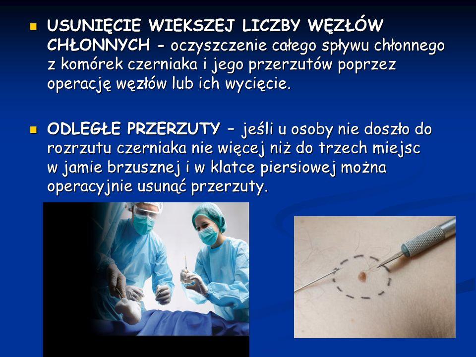 USUNIĘCIE WIEKSZEJ LICZBY WĘZŁÓW CHŁONNYCH - oczyszczenie całego spływu chłonnego z komórek czerniaka i jego przerzutów poprzez operację węzłów lub ic