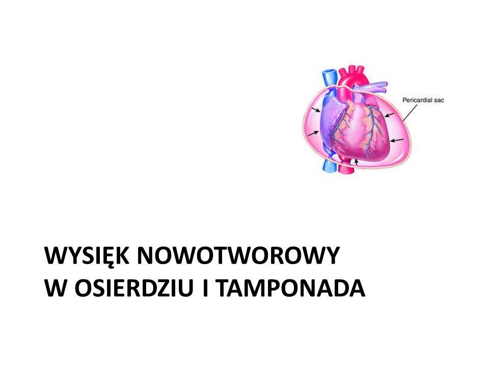 Wysięk nowotworowy w osierdziu i tamponada 1.Zajęcie osierdzia występuje najczęściej w przebiegu : – raka płuca, – raka piersi – chłoniaków.