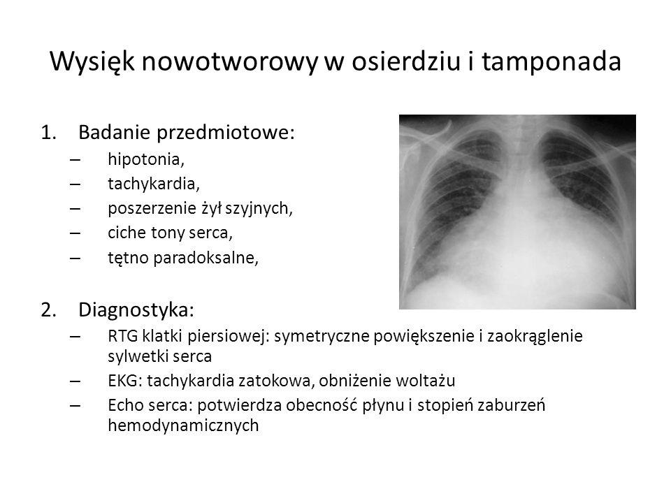 Wysięk nowotworowy w osierdziu i tamponada 1.Badanie przedmiotowe: – hipotonia, – tachykardia, – poszerzenie żył szyjnych, – ciche tony serca, – tętno paradoksalne, 2.Diagnostyka: – RTG klatki piersiowej: symetryczne powiększenie i zaokrąglenie sylwetki serca – EKG: tachykardia zatokowa, obniżenie woltażu – Echo serca: potwierdza obecność płynu i stopień zaburzeń hemodynamicznych