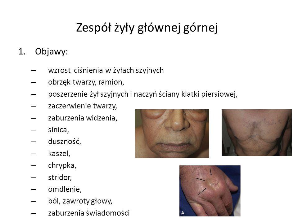 Zespół żyły głównej górnej 1.Objawy: – wzrost ciśnienia w żyłach szyjnych – obrzęk twarzy, ramion, – poszerzenie żył szyjnych i naczyń ściany klatki piersiowej, – zaczerwienie twarzy, – zaburzenia widzenia, – sinica, – duszność, – kaszel, – chrypka, – stridor, – omdlenie, – ból, zawroty głowy, – zaburzenia świadomości