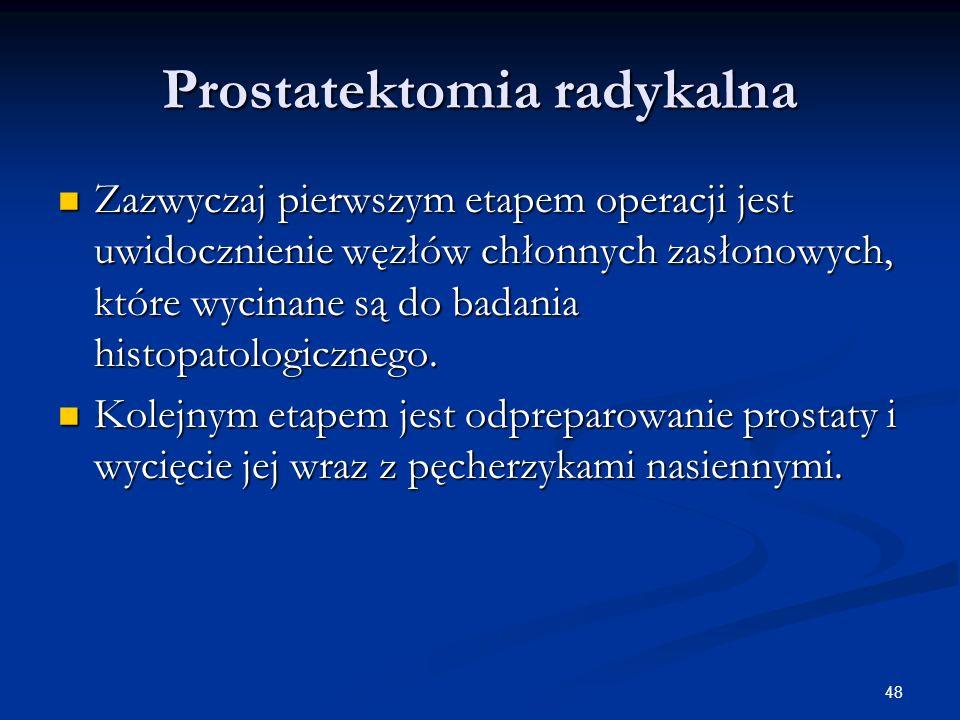 48 Prostatektomia radykalna Zazwyczaj pierwszym etapem operacji jest uwidocznienie węzłów chłonnych zasłonowych, które wycinane są do badania histopat