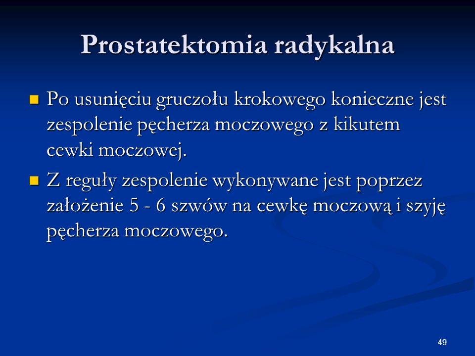 49 Prostatektomia radykalna Po usunięciu gruczołu krokowego konieczne jest zespolenie pęcherza moczowego z kikutem cewki moczowej. Po usunięciu gruczo