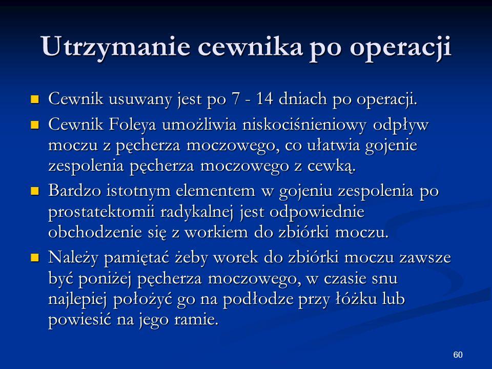 60 Utrzymanie cewnika po operacji Cewnik usuwany jest po 7 - 14 dniach po operacji. Cewnik usuwany jest po 7 - 14 dniach po operacji. Cewnik Foleya um