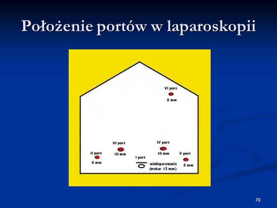 70 Położenie portów w laparoskopii