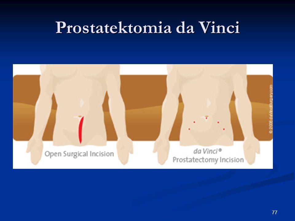 77 Prostatektomia da Vinci