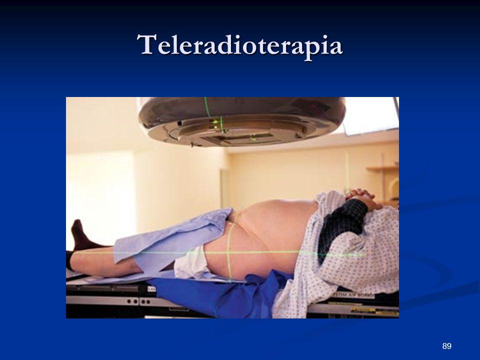 89 Teleradioterapia