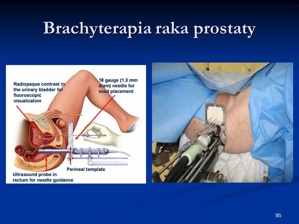 95 Brachyterapia raka prostaty