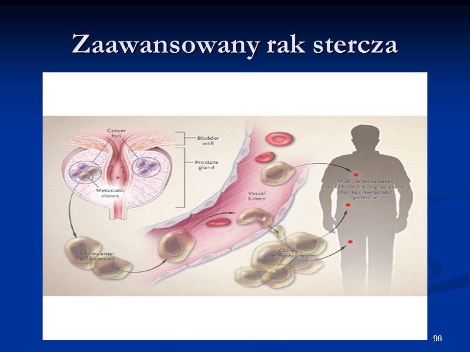 98 Zaawansowany rak stercza