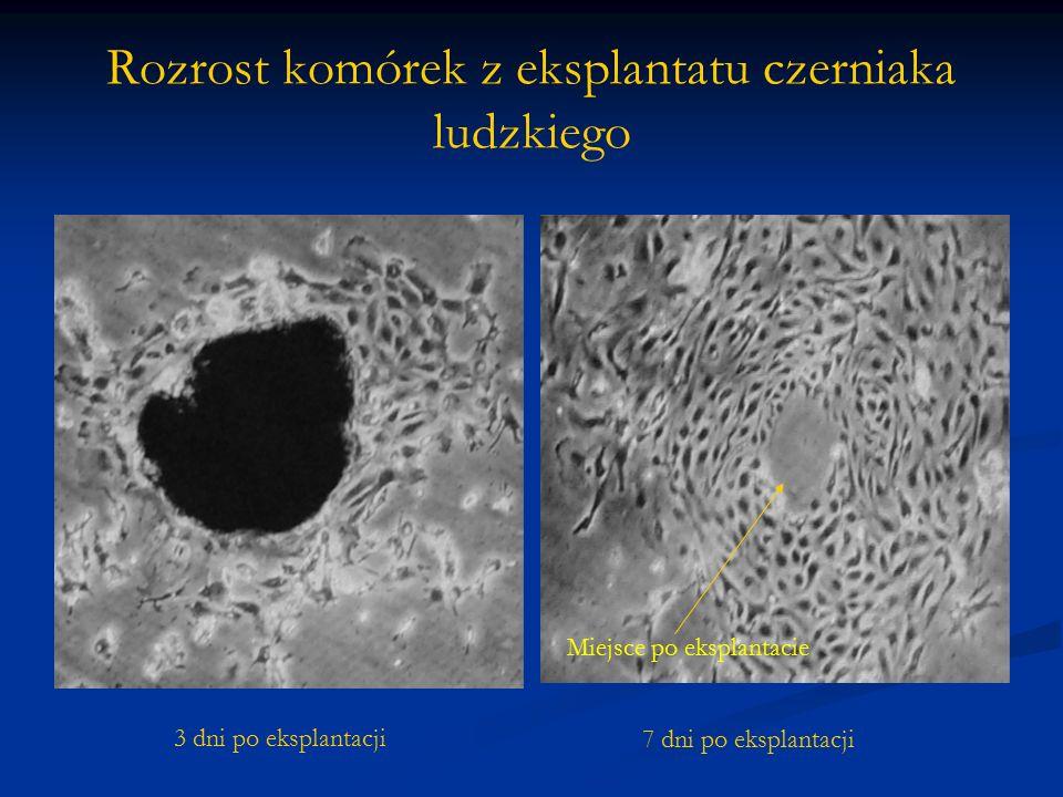 Rozrost komórek z eksplantatu czerniaka ludzkiego 3 dni po eksplantacji 7 dni po eksplantacji Miejsce po eksplantacie