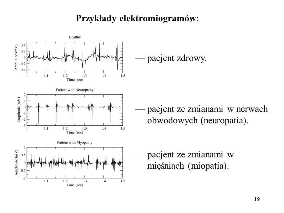 19 — pacjent zdrowy. — pacjent ze zmianami w nerwach obwodowych (neuropatia). — pacjent ze zmianami w mięśniach (miopatia). Przykłady elektromiogramów