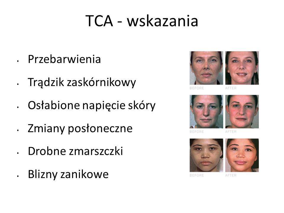 TCA - wskazania Przebarwienia Trądzik zaskórnikowy Osłabione napięcie skóry Zmiany posłoneczne Drobne zmarszczki Blizny zanikowe